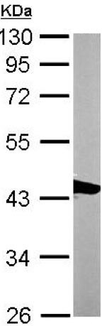 Western blot - Anti-Actin Regulatory Protein CAPG antibody (ab155688)