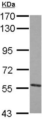 Western blot - Anti-PVRL4 antibody (ab155692)