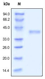 SDS-PAGE - RSPO1 protein (Active) (ab155744)