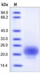 SDS-PAGE - RSPO1 protein (Active) (ab155745)