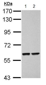 Western blot - Anti-TOX1 antibody (ab155768)