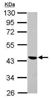 Western blot - Anti-SMOC1 antibody (ab155776)