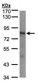 Western blot - Anti-LIMD1 antibody - C-terminal (ab155788)