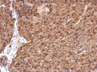 Immunohistochemistry (Formalin/PFA-fixed paraffin-embedded sections) - Anti-Thymidylate Synthase  antibody (ab155795)