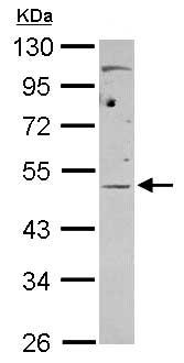 Western blot - Anti-eIF4A3 antibody (ab155804)