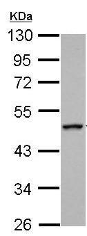 Western blot - Anti-RGS6 antibody (ab155809)