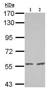 Western blot - Anti-KIAA0652 antibody (ab155826)