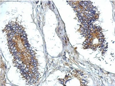 Immunohistochemistry (Formalin/PFA-fixed paraffin-embedded sections) - Anti-KIAA0652 antibody (ab155826)