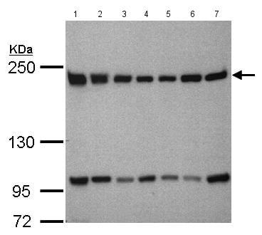Western blot - Anti-TAF172 antibody - C-terminal (ab155917)