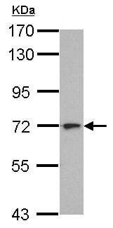 Western blot - Anti-L3MBTL4 antibody (ab155925)