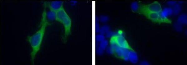 Immunocytochemistry/ Immunofluorescence - Anti-Huntingtin antibody (ab155930)