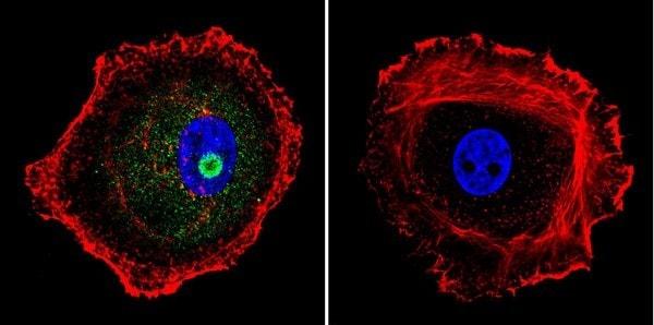 Immunocytochemistry/ Immunofluorescence - Anti-STAT1 antibody [15H3] (ab155933)