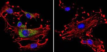 Immunocytochemistry/ Immunofluorescence - Anti-CDC42 antibody (ab155940)