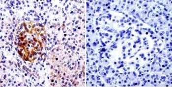 Immunohistochemistry (Formalin/PFA-fixed paraffin-embedded sections) - Anti-CDC42 antibody (ab155940)