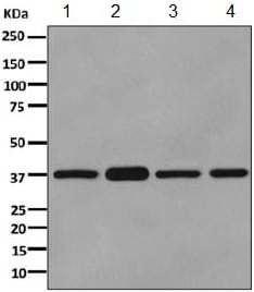 Western blot - Anti-Pyruvate Dehydrogenase E1 beta subunit  antibody [EPR11096(B)] (ab155953)