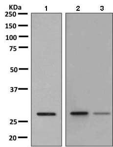 Western blot - Anti-RAB38 antibody [EPR9427] (ab155956)