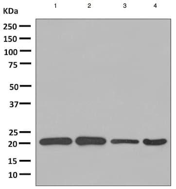 Western blot - Anti-ARL 1 antibody [EPR10595] (ab155982)