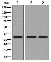 Western blot - Anti-PSME1 antibody [EPR10968(B)] (ab155985)