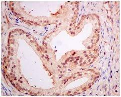 Immunohistochemistry (Formalin/PFA-fixed paraffin-embedded sections) - Anti-PSME1 antibody [EPR10968(B)] (ab155985)