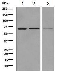 Western blot - Anti-SLC34A3 antibody [EPR9588] (ab155986)