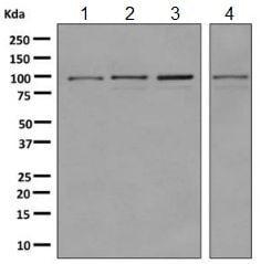 Western blot - Anti-USP5 antibody [EPR10453] (ab155993)