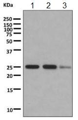Western blot - Anti-Myelin Basic Protein antibody [EPR10144] (ab155995)