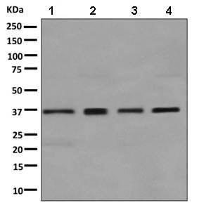 Western blot - Anti-GALE antibody [EPR11088(B)] (ab155997)