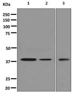 Western blot - Anti-Syntaxin 18 antibody [EPR8939] (ab156017)