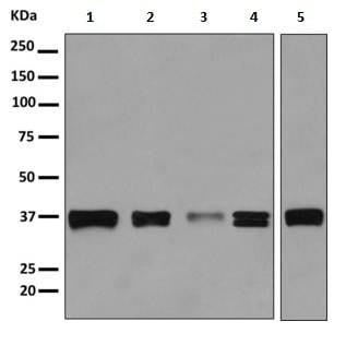 Western blot - Anti-MAS1L antibody [EPR11440(B)] (ab156018)