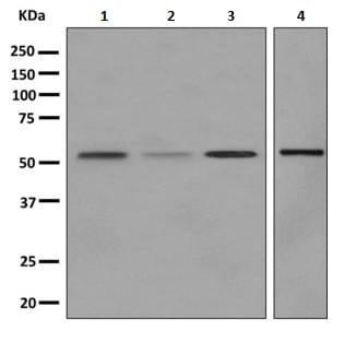 Western blot - Anti-ALDH1A2 antibody [EPR9370] (ab156019)