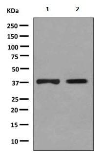 Western blot - Anti-DHRS7  antibody [EPR9339(B)] (ab156021)