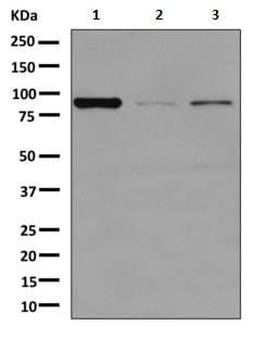 Western blot - Anti-Glyt2 antibody [EPR10748] (ab156022)