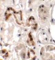 Immunohistochemistry (Formalin/PFA-fixed paraffin-embedded sections) - Anti-DBX1 antibody (ab156283)