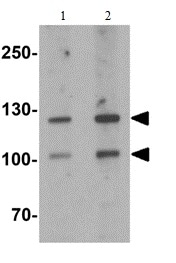 Western blot - Anti-CRB2 antibody (ab156286)