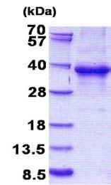 SDS-PAGE - EHF protein (His tag) (ab156320)