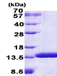 SDS-PAGE - C6orf115 protein (His tag) (ab156321)