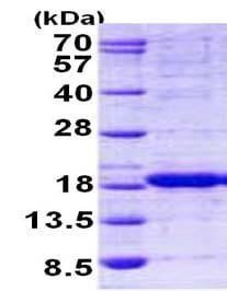 SDS-PAGE - HINT2 protein (His tag) (ab156323)