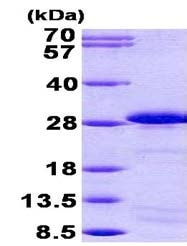 SDS-PAGE - SP17 protein (His tag) (ab156326)