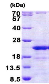SDS-PAGE - CD74 protein (His tag) (ab156328)
