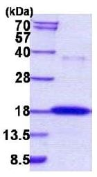 SDS-PAGE - Ribonuclease 7 protein (His tag) (ab156334)