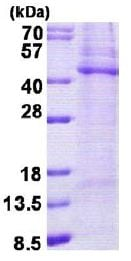 SDS-PAGE - TPST2 protein (His tag) (ab156339)