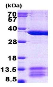SDS-PAGE - MRPL1 protein (His tag) (ab156342)