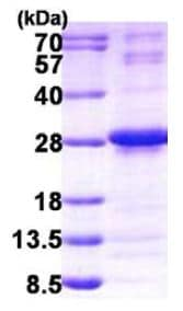 SDS-PAGE - NUDT4 protein (His tag) (ab156348)