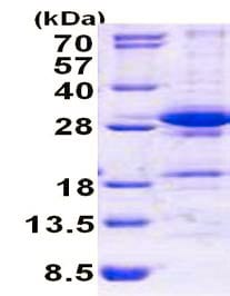 SDS-PAGE - DGCR6L protein (His tag) (ab156350)