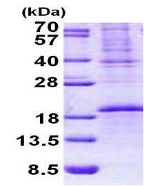 SDS-PAGE - OCIAD2 protein (His tag) (ab156356)