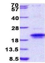 SDS-PAGE - TMEM149 protein (His tag) (ab156360)