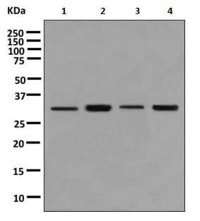 Western blot - Anti-RNF35 antibody [EPR9668] (ab156583)