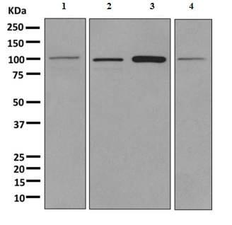 Western blot - Anti-SLC14A2 antibody [EPR8620] (ab156589)