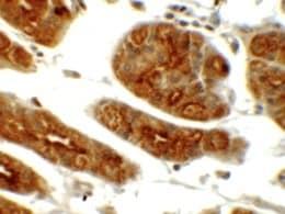 Immunohistochemistry (Formalin/PFA-fixed paraffin-embedded sections) - Anti-SGK1 antibody (ab156637)