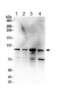 Western blot - Anti-LARP4 antibody (ab156687)
